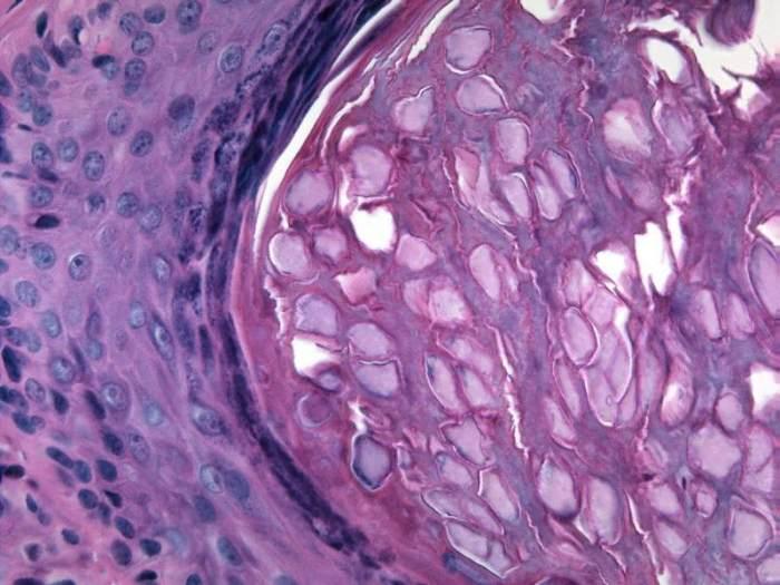 Molluscum conatgiosum, vulva, 40X
